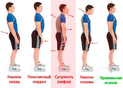 диета при пухлых коленях